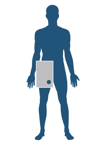 Sorbx™ Angiography shield diagram